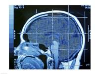 Close-up of an MRI scan of the human brain Fine Art Print
