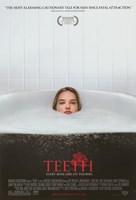 """Teeth - 11"""" x 17"""" - $15.49"""